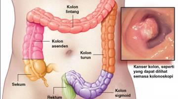 SARINGAN PENTING: Kanser kolorektal sejenis kanser yang bermula dalam kolon (usus besar) atau rektum (dubur) kita.