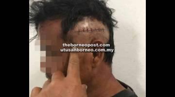 CEDERA: Mangsa mengalami kecederaan selepas diserang abangnya menggunakan gergaji.
